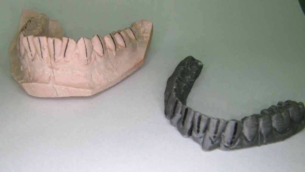Rafael-Vidal-teeth-1024x578